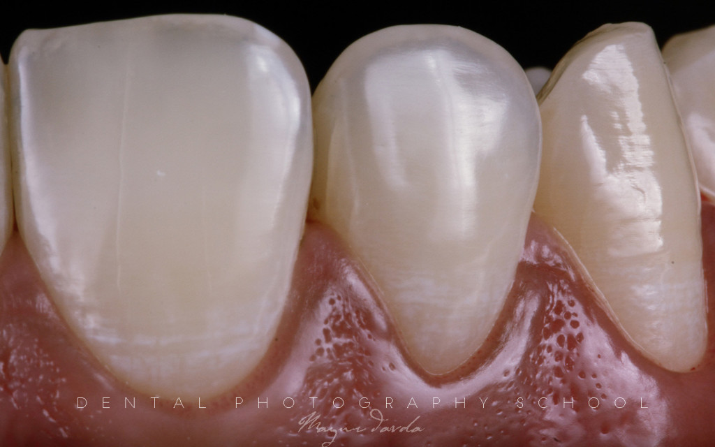 dental photography by dr mayur davda