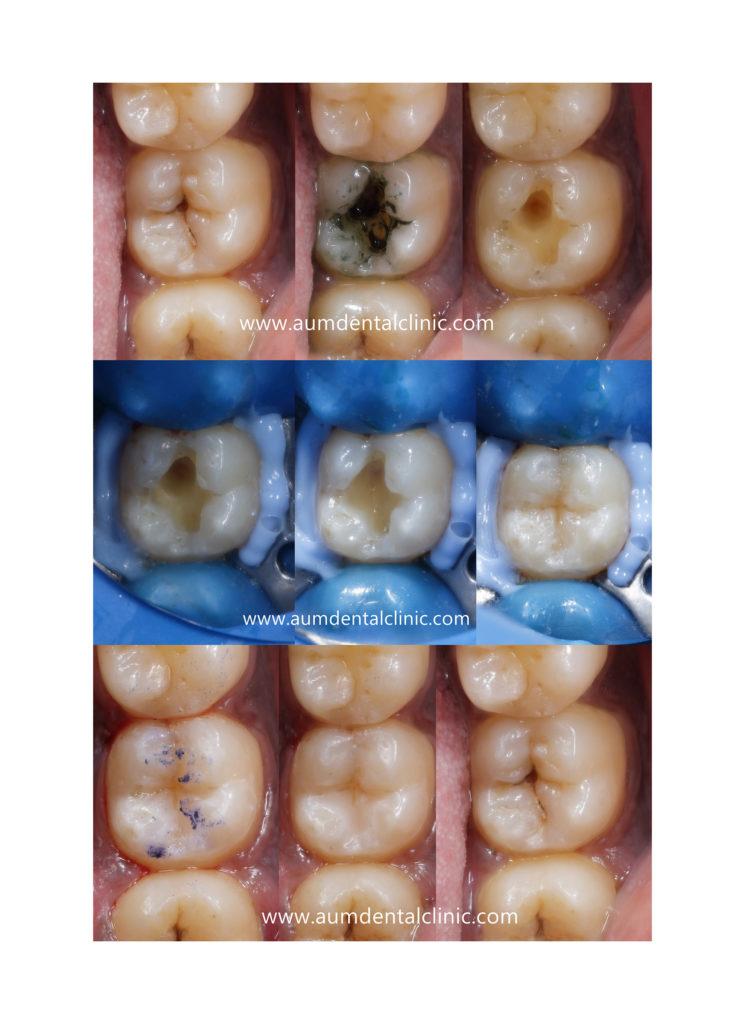 Dental photography