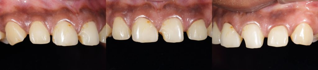 Anterior aesthetic images using a dental contrastor